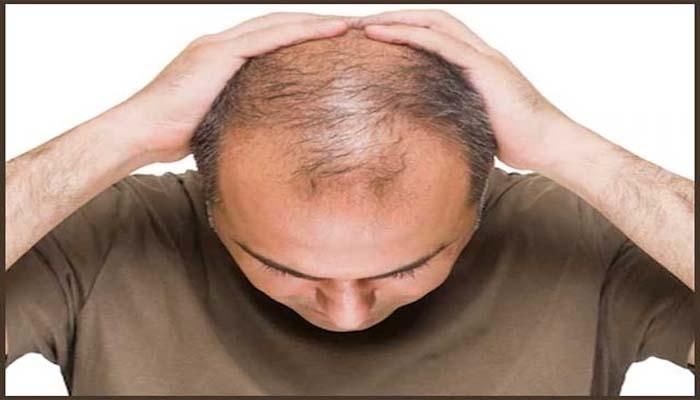 سر کے بالوں کا مسئلہ